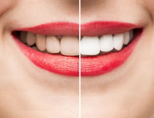 Teeth Whitening: Professional is Best