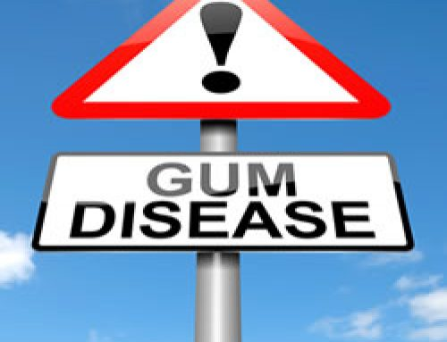 Troy Dentist: How Do I Know if My Gums Are Unhealthy?