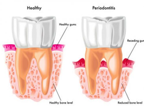 Reversing Periodontal Disease – Treatments That Work