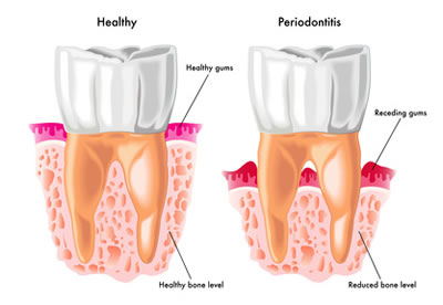 Periodontal Disease Treatment - Troy, MI