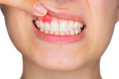 Tooth or Gum Pain? 3 Signs it May Be Time for a Dentist Visit