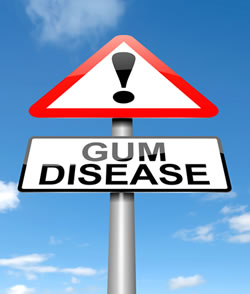 Gum Disease - Troy Dentist, Paul Mansky DDS