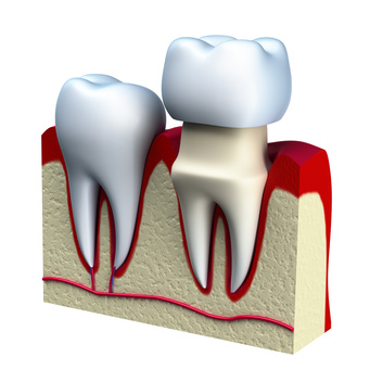 Troy Dentist - Dental Crown - Paul Mansky, DDS