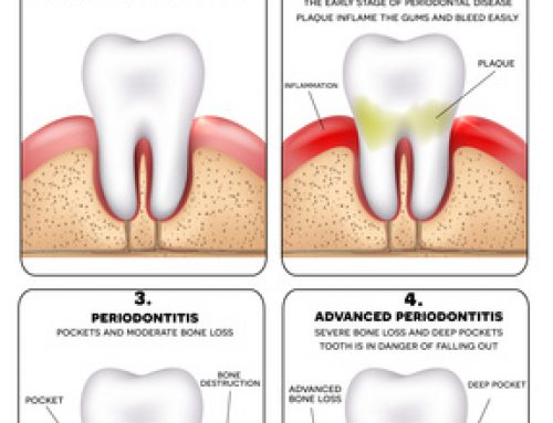Most Everything You Need to Know About Gingivitis