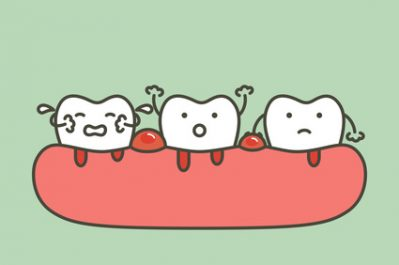 The Causes and Treatment For Bleeding Gums