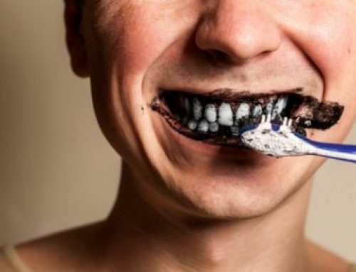 A Short Guide to the Use of Activated Charcoal for Teeth Whitening