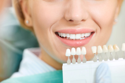Teeth whitening in Troy MI - Paul Mansky DDS
