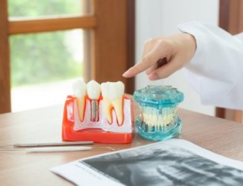 What to Expect During a Dental Implant Surgery?
