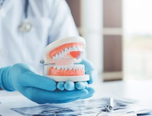 Everything You Need to Know About Periodontal Charting